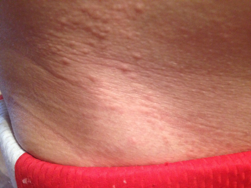 Сыпь на теле у беременной чешется 48