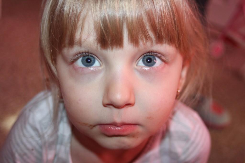 Почему у ребёнка синеет переносица
