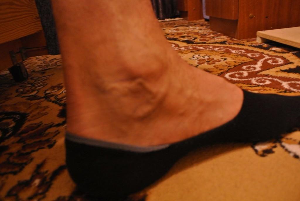 Варикоз болит нога что делать Варикоз
