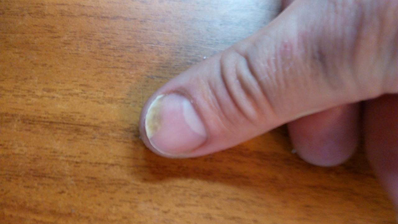 Лечить в домашних условиях грибок на ногах перекисью 91