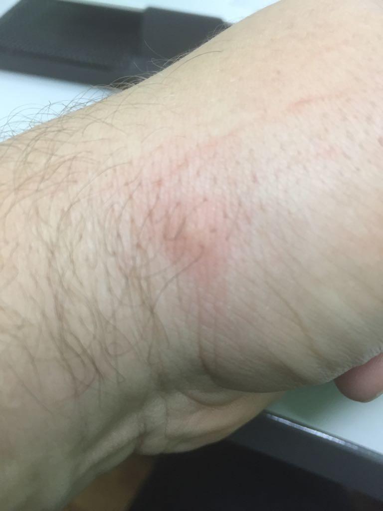 Прыщи на руках — реакция кожи на действие аллергенов.