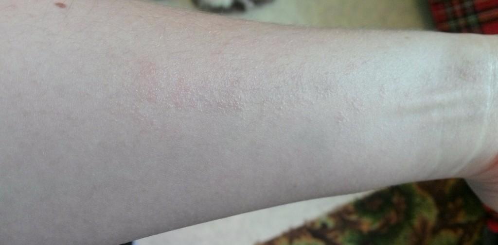 Сыпь под кожей на руках