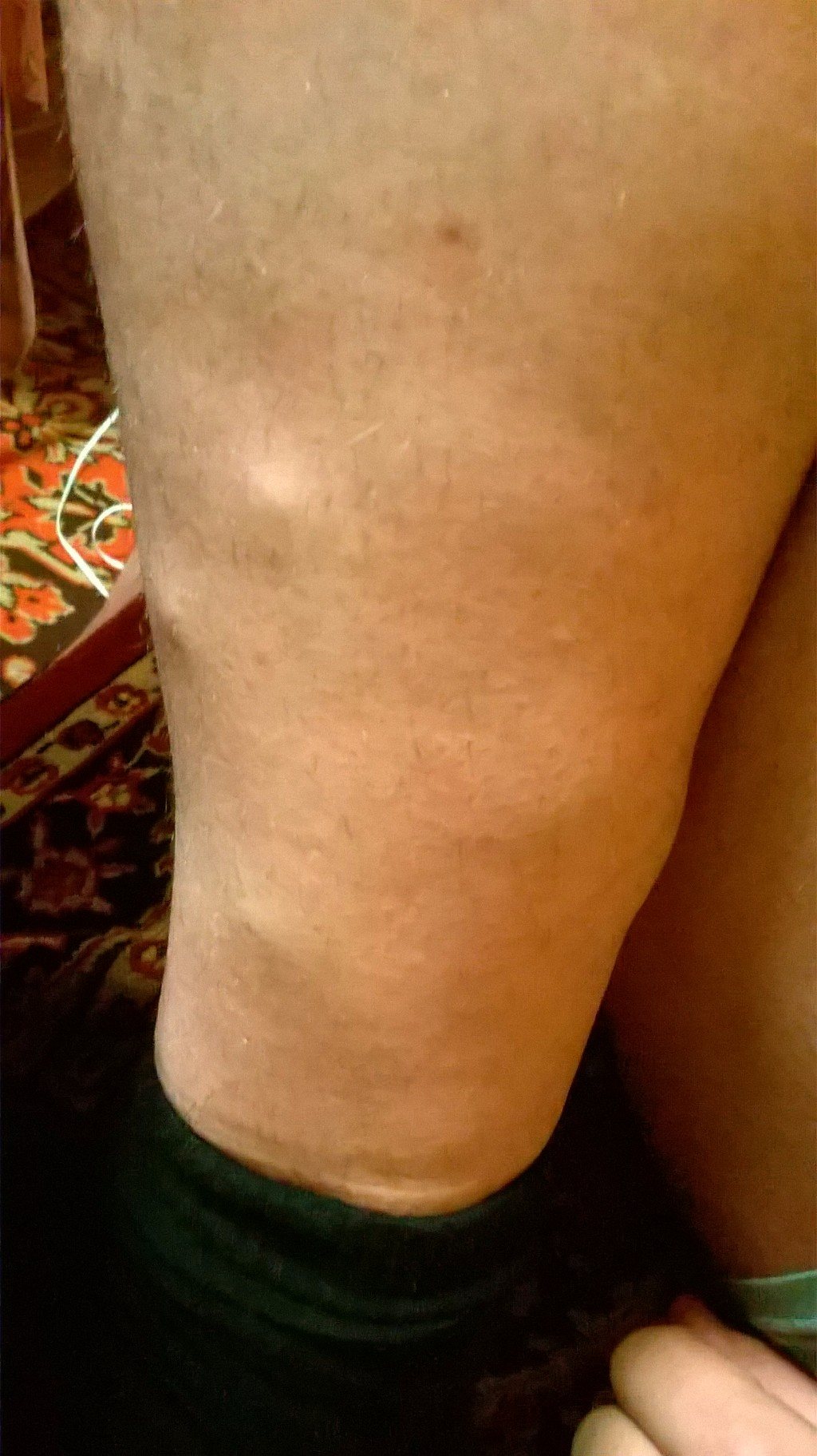 Уплотнения под кожей голеней что это такое