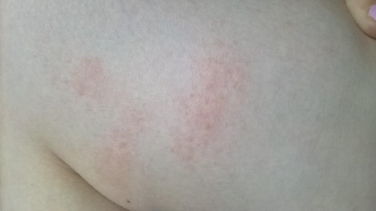 аллергия на коже красная сыпь