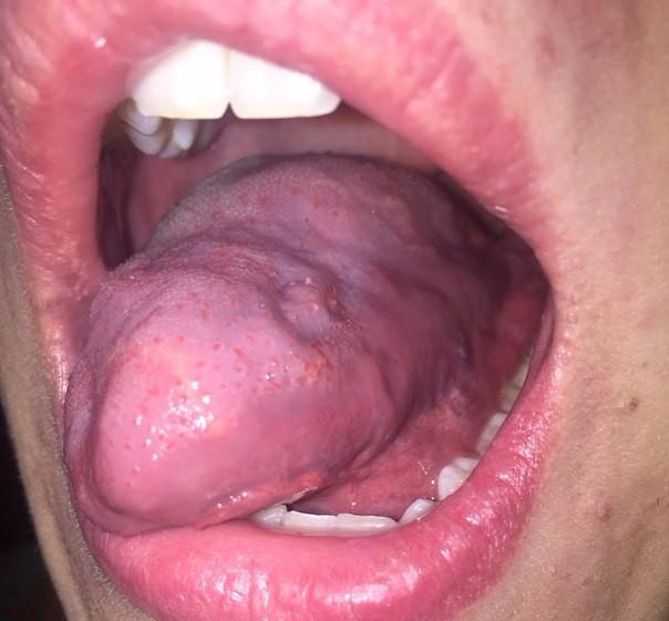 разъело весь язык лекарства