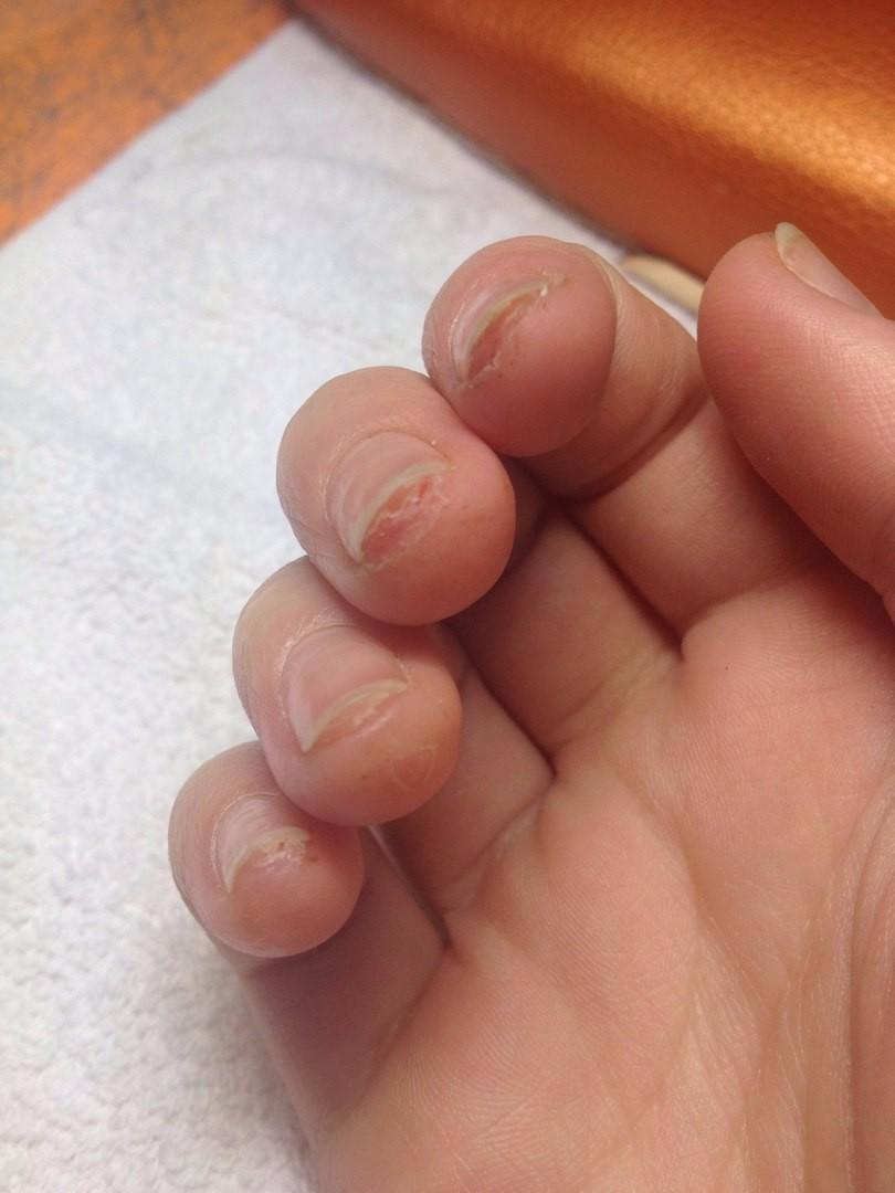 Почему трескается кожа около ногтей на пальцах рук